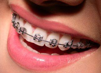 Çocuklarda Diş Çarpıklığının Sebepleri