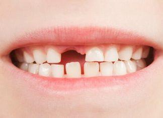 Eksik Dişlerin Tamamlanması