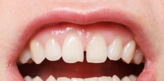 Dişler Arası Boşluklar