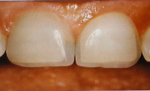 Lamine Dişler